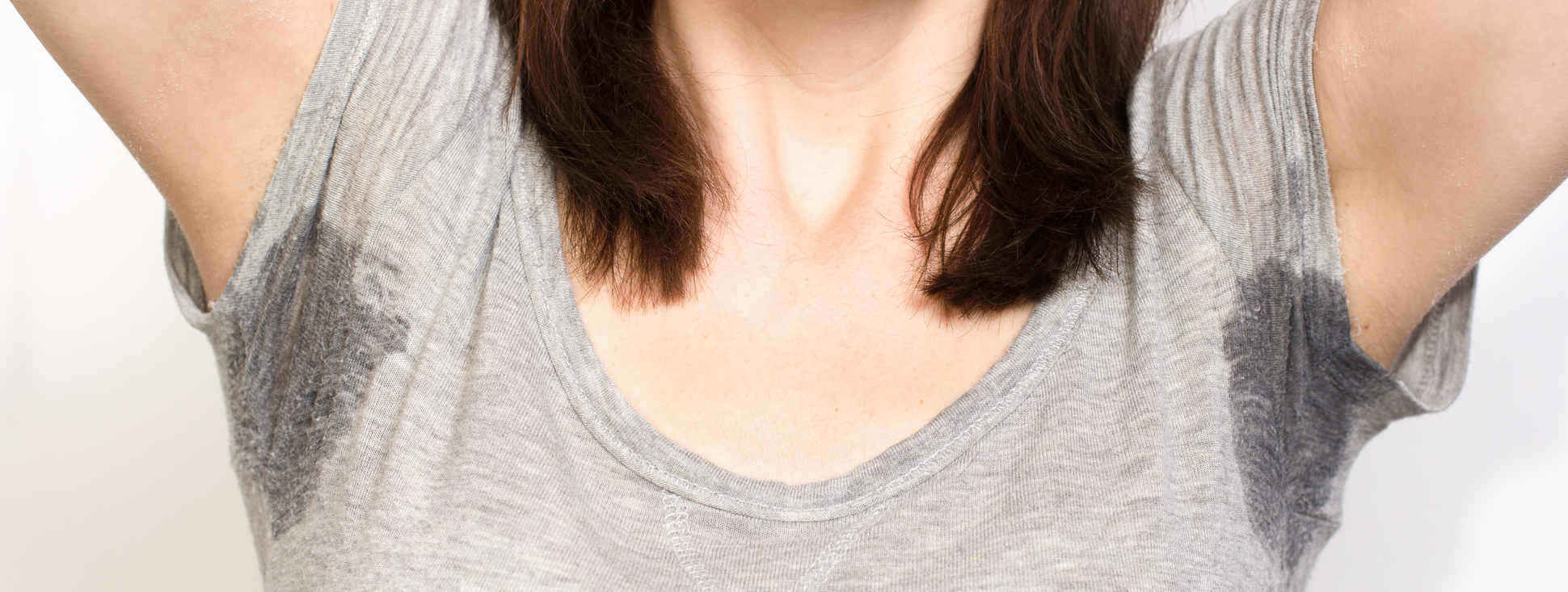Botulinum toxin-excessive sweating